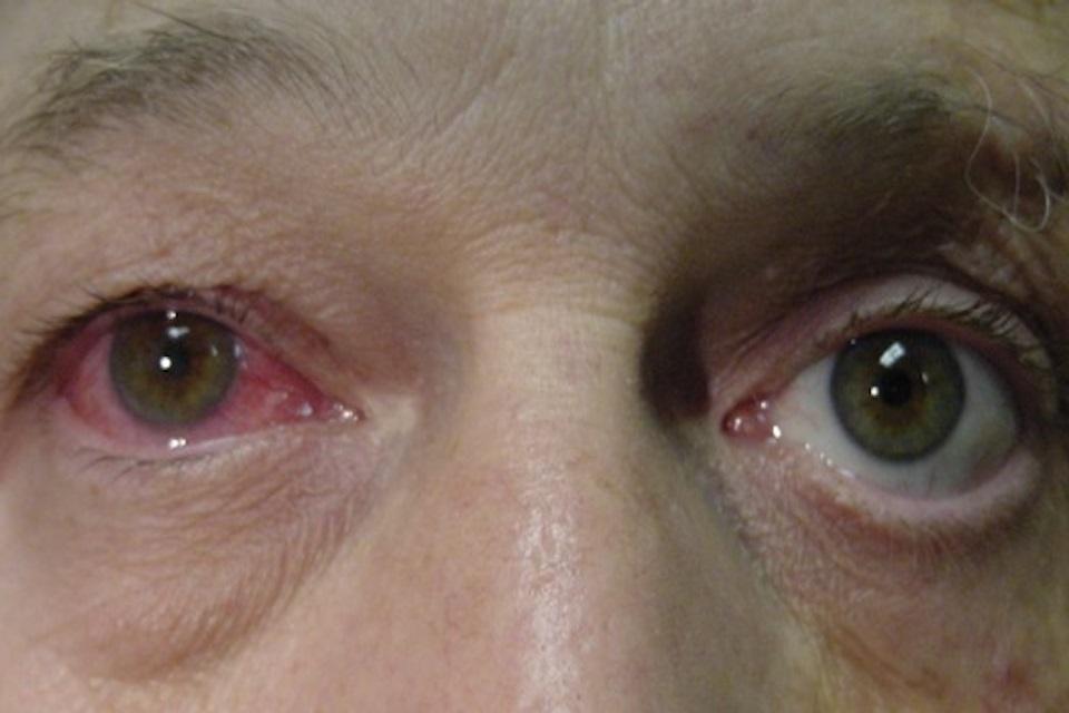 Olho vermelho - uveíte - oftalmologista