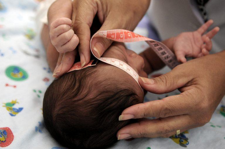 Saúde - geral - microcefalia pediatria crianças hospitais médicos atendimento enfermagem saúde da família
