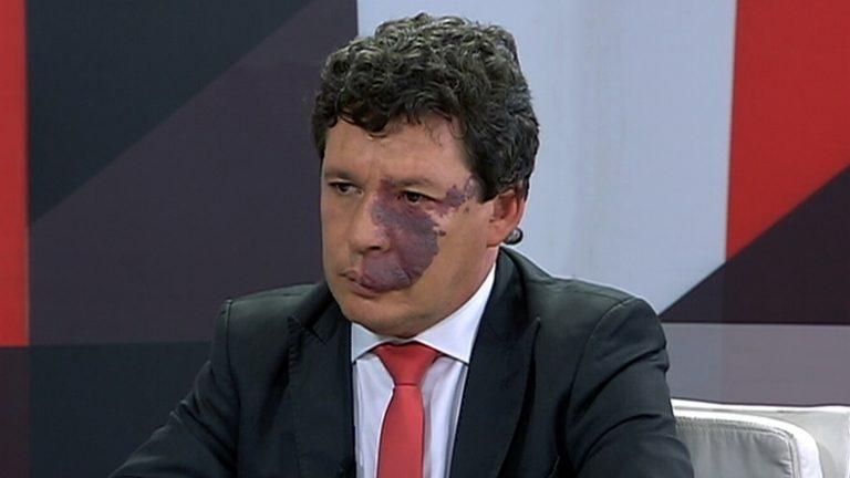 dep. Reginaldo Lopes