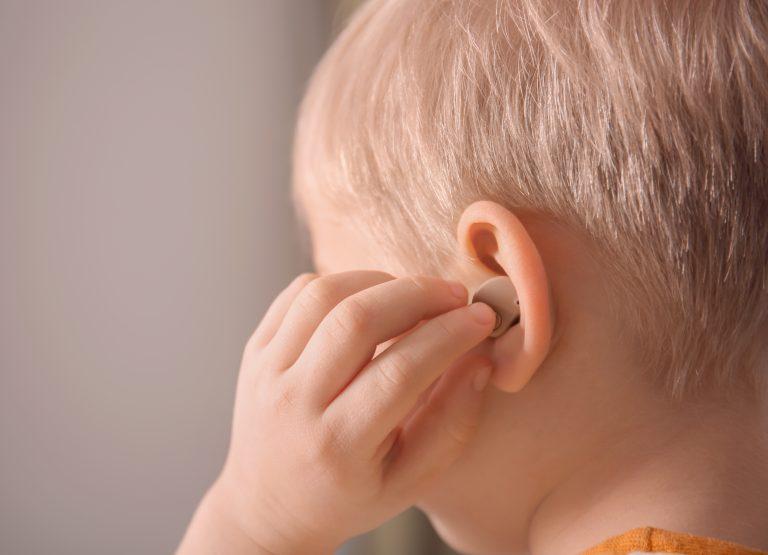 Criança aparelho aditivo. deficiente auditivo. Surdo. Surdez